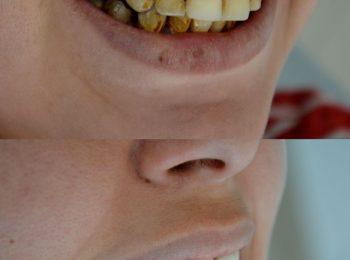 Prix blanchiment dents Tunisie