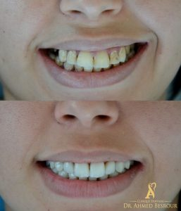 Produit Blanchiment dents Tunisie
