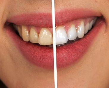 Blanchiment des dents en Tunis