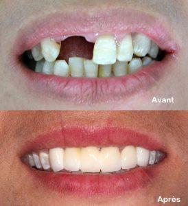 Esthetique dentaire Tunisie