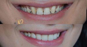 Esthétique dentaire Tunisie