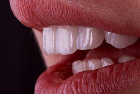 Facettes dentaire au centre urban nord Tunisis