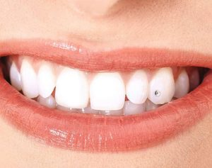 Strasse dentaire à tunis