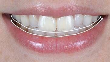 Réhabilitation esthétique dentaire complète